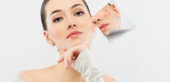 Typy na léčbu akné
