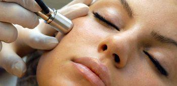 Laserova terapie akne