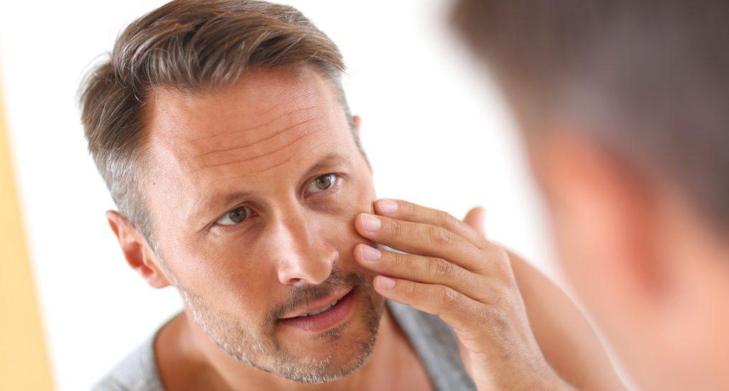 Príčiny akné u mužů