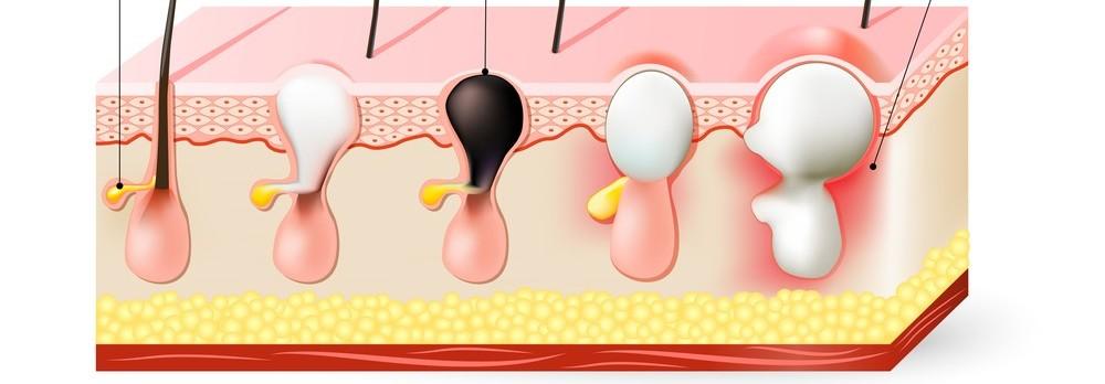 Jaký je rozdíl mezi akné a vyrážkou